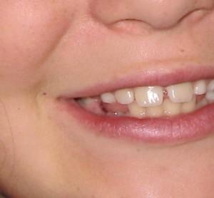Une dent en moins pour Audrey